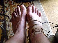Normalna stopa vs opuchnięta stopa