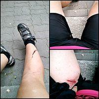 Prawa noga rozcięta (dobę później krew się jeszcze leje), prawa łydka skurcz, rozdarte spodenki, oby tylko stłuczenie mięśnia plus kolejna rana na lewym udzie