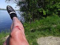 Gleba nad Jeziorem w Hlucinie, liżemy rany